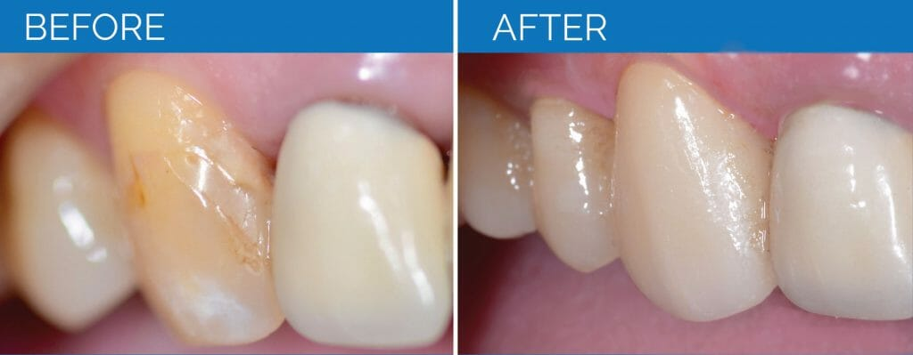 Tooth Before and After Photos