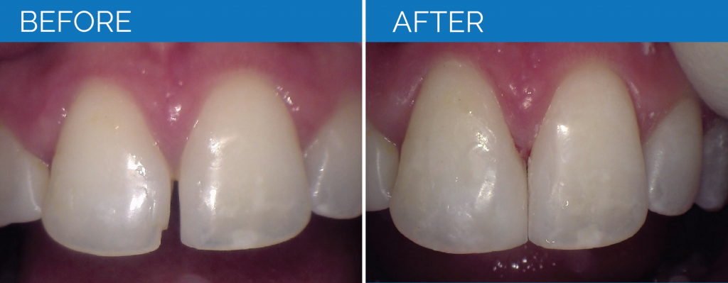 Before and After Restorative Dentistry